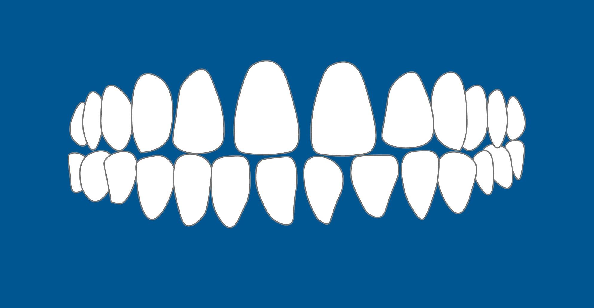 Имам разстояние между зъбите.
