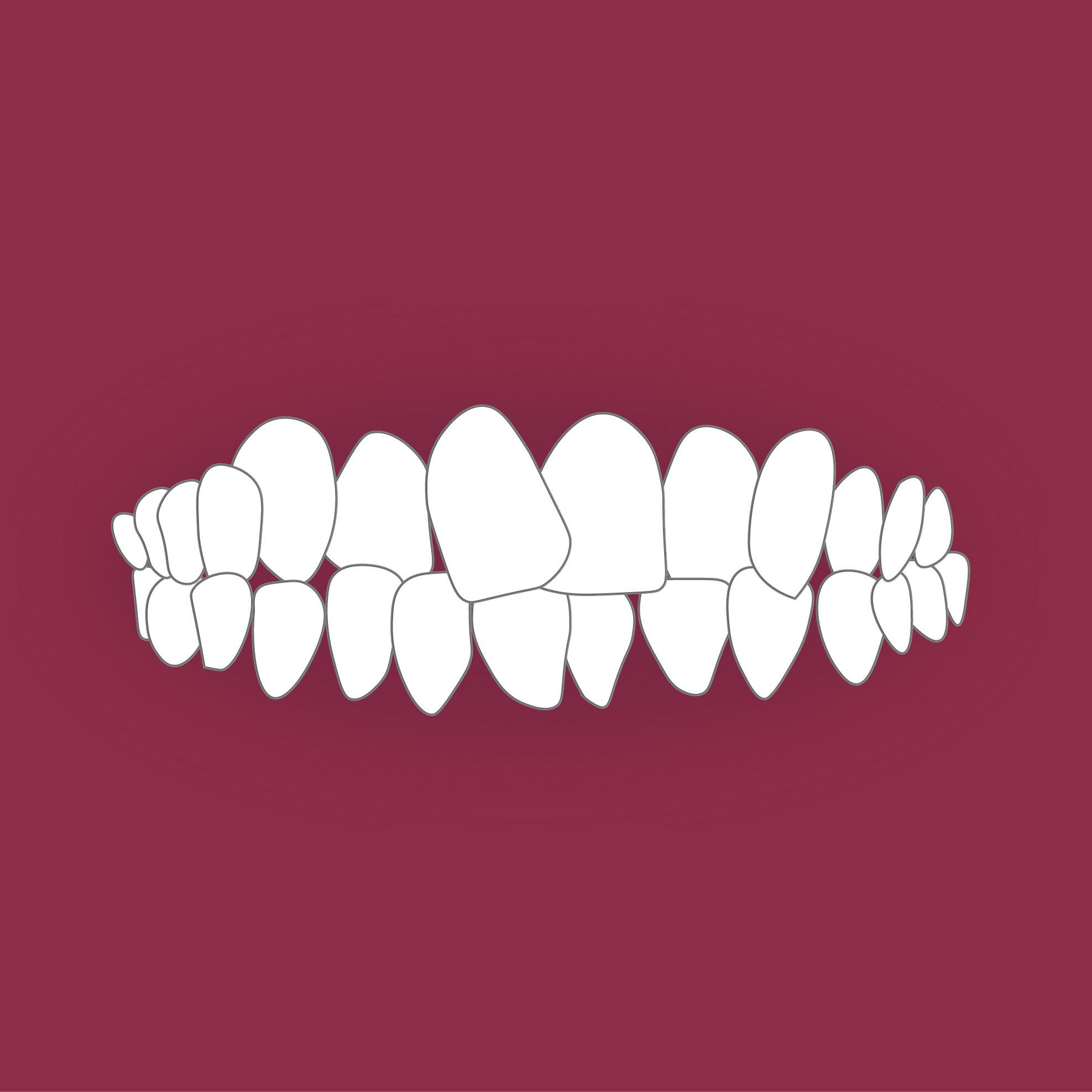 Зъбите ми се застъпват.
