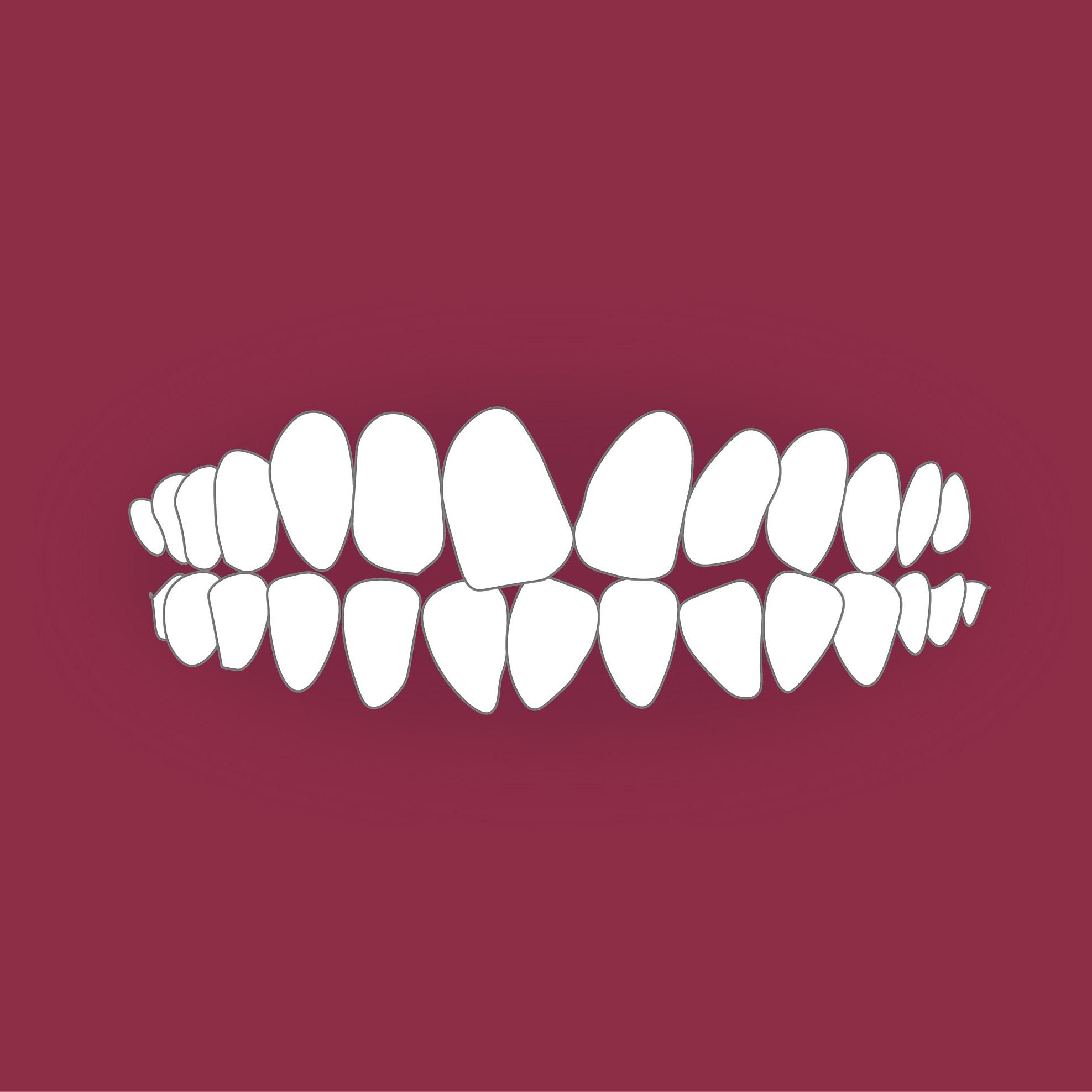 Зъбите ми са криви.