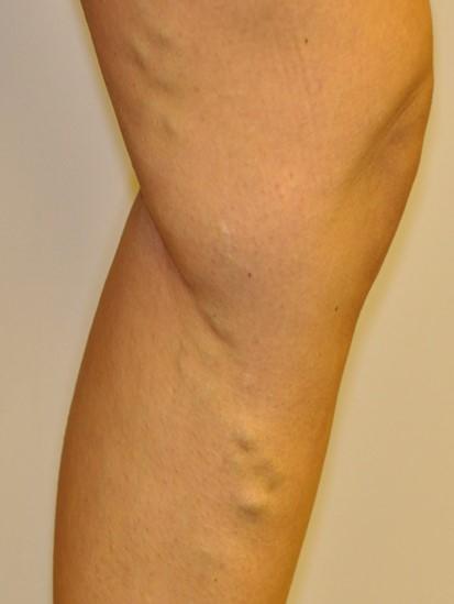 Small, single hard lumpy vein