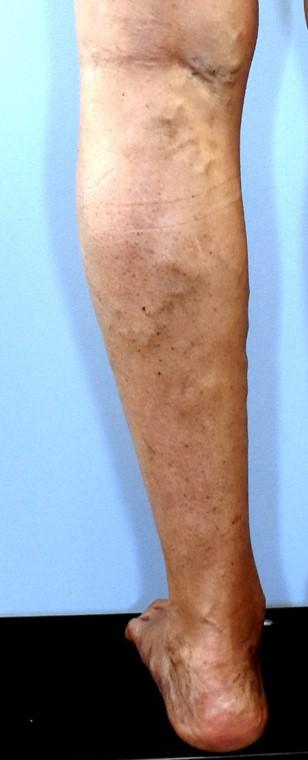 Several varicose veins