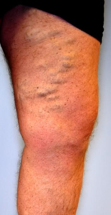 Extensive varicose veins