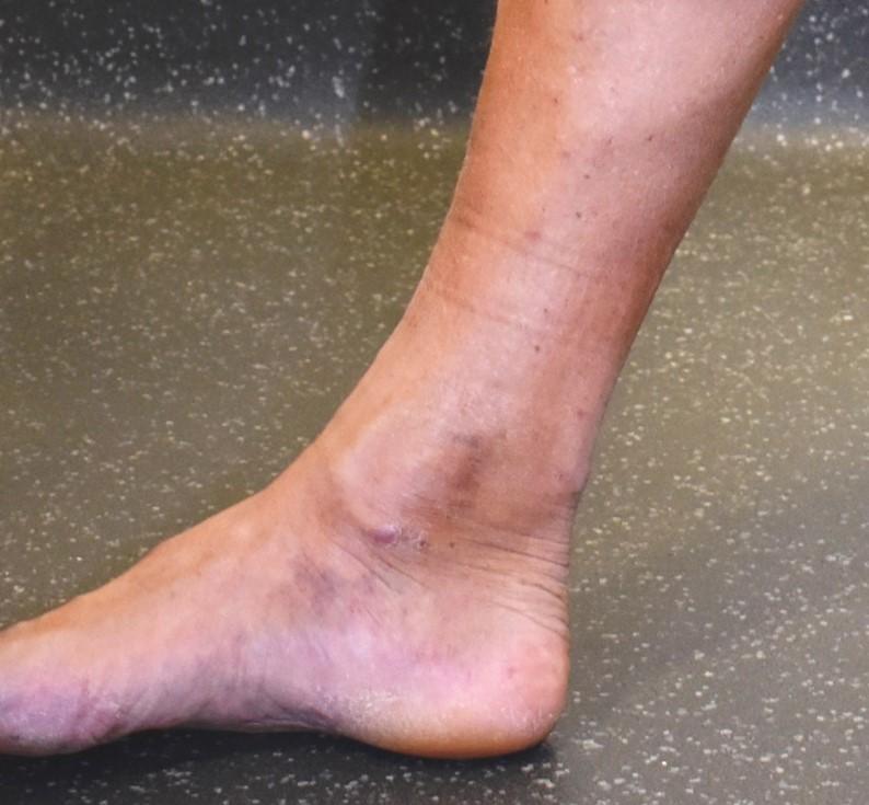 Light staining in the lower leg