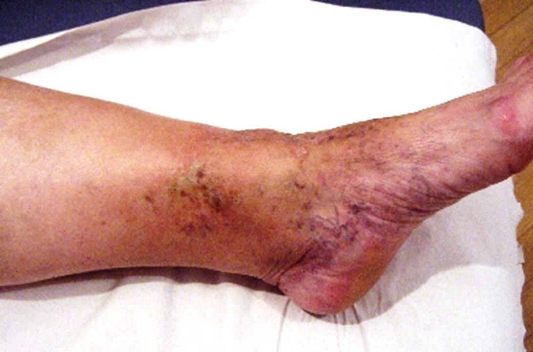 Stronger staining on the lower leg