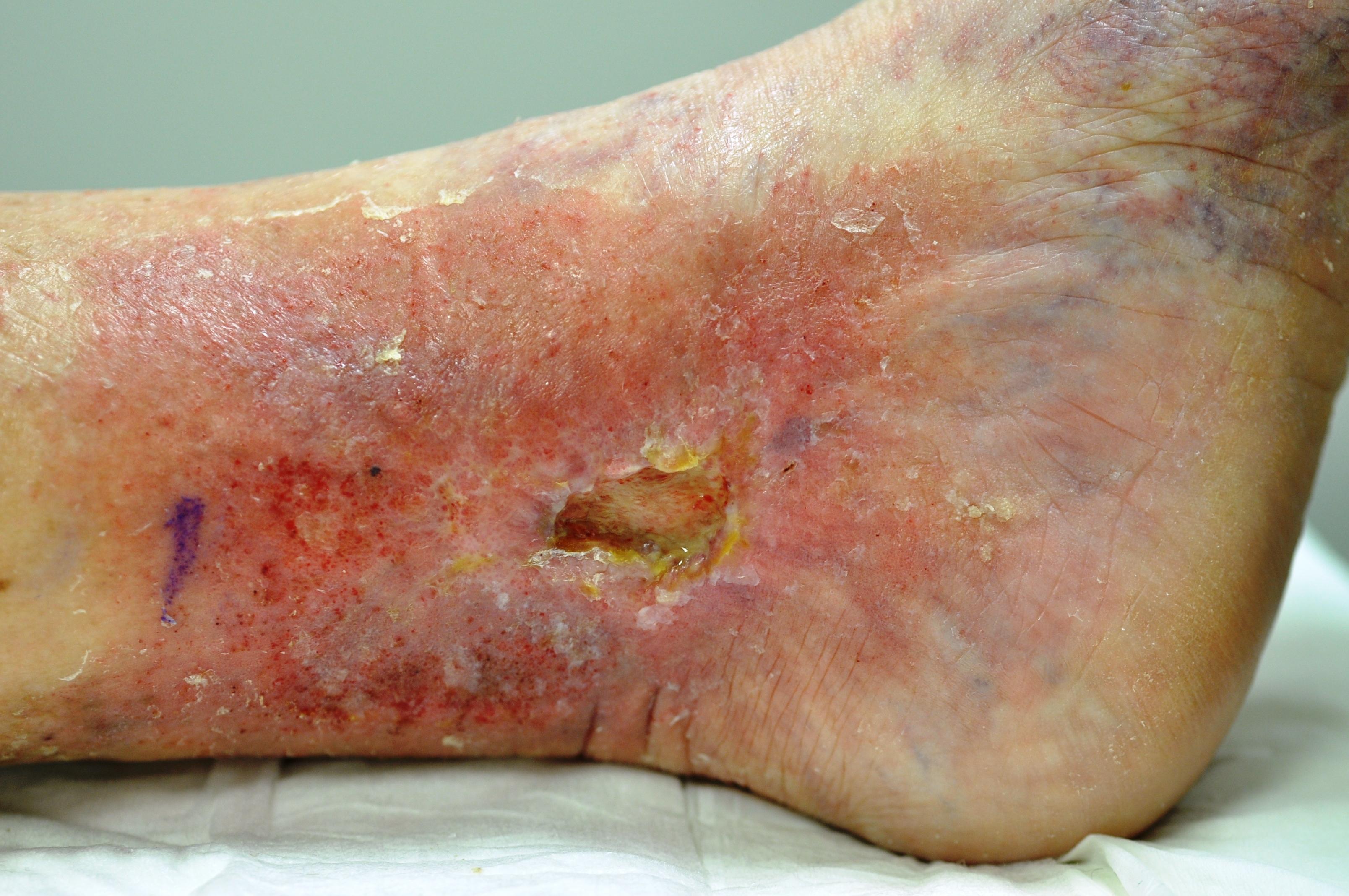 Open leg ulcer