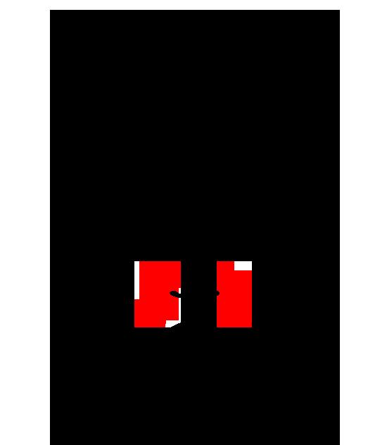 Nasogenian sulcus